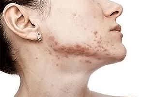 Acne-in-fase-attiva