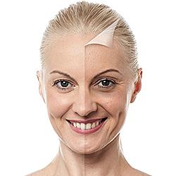 Biorivitalizzazione-viso-prima-dopo