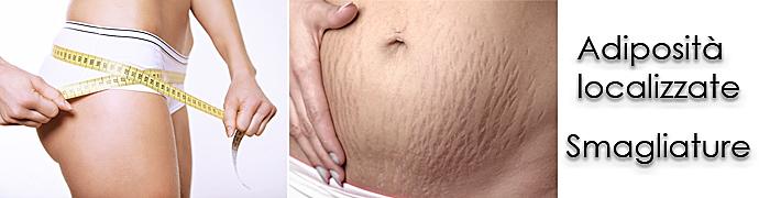 La carbossiterapia per fianchi, addome, smagliature