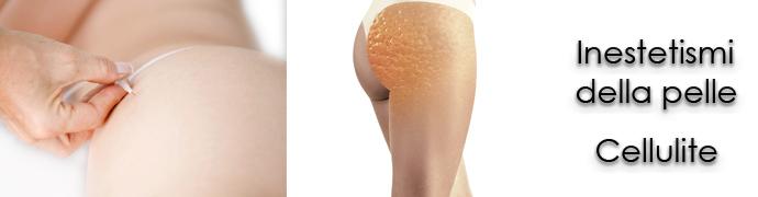 La carbossiterapia per gli inestetismi della pelle e cellulite