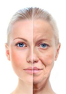 Needling-rigenerazione-pelle