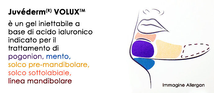 Juvederm-volux-Mento-mandibola